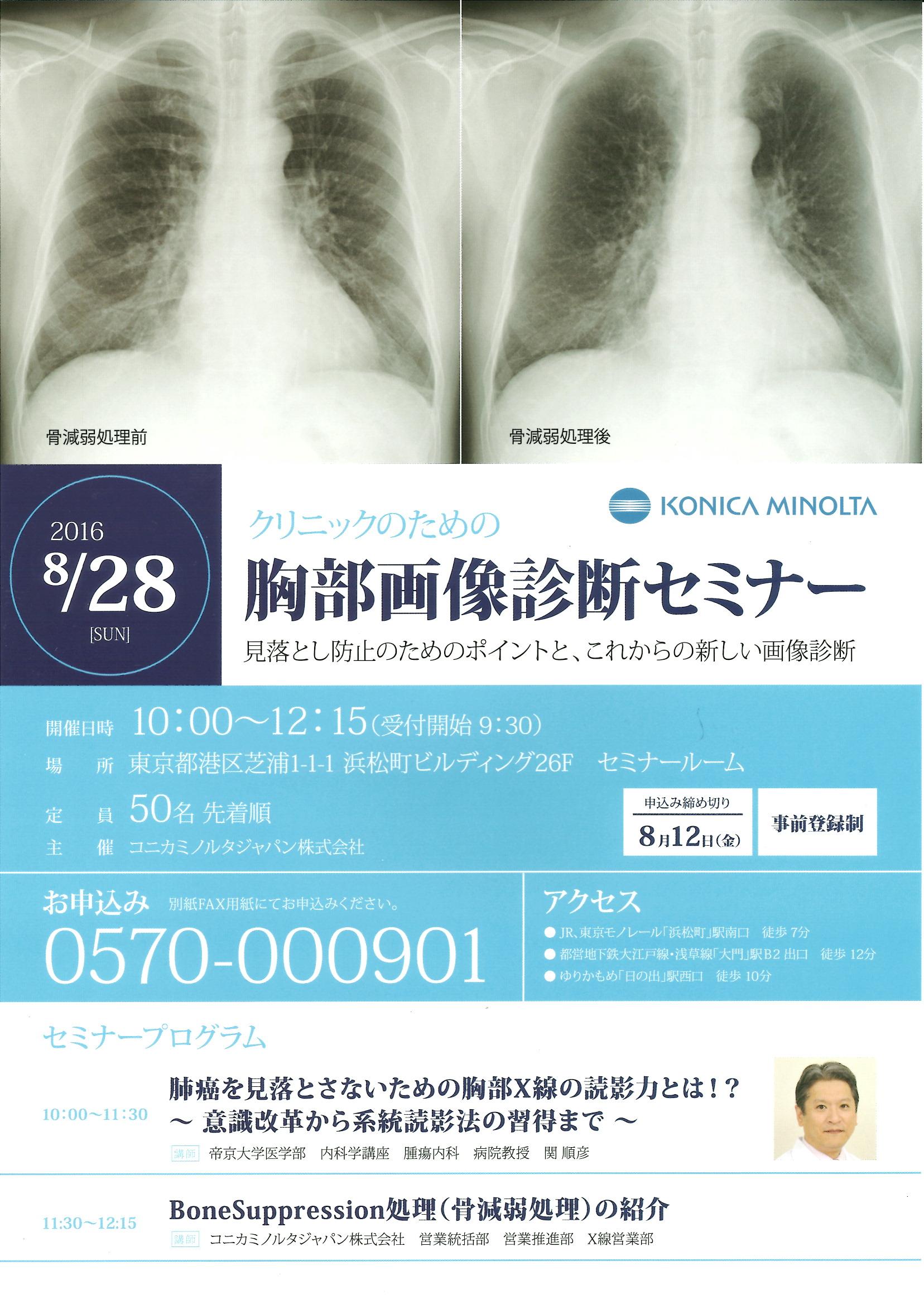 肺がんのX線診断